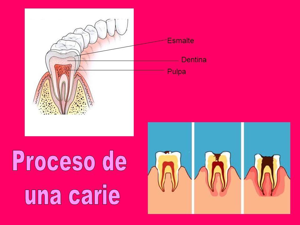 Pulpa Dentina Esmalte