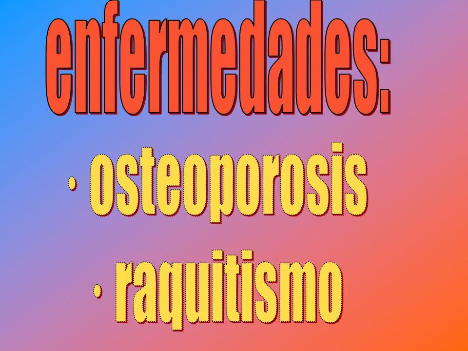 Es una enfermedad que afecta directamente al hueso, y se caracteriza por una disminución de la masa ósea; los huesos afectados son más porosos y se fracturan con más facilidad que el hueso normal.