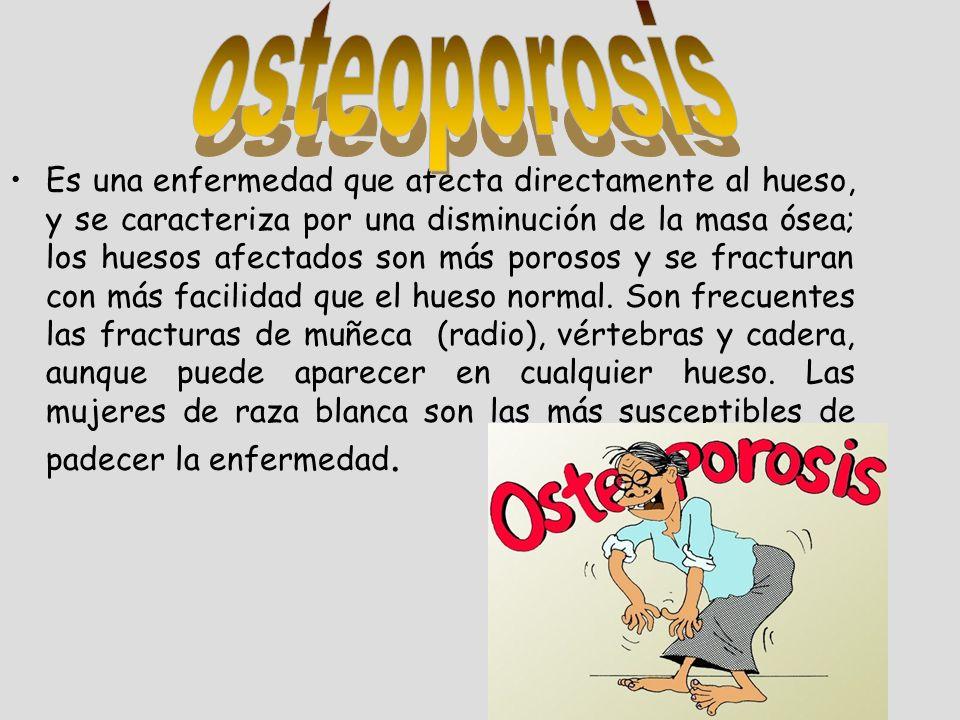 Es una enfermedad que afecta directamente al hueso, y se caracteriza por una disminución de la masa ósea; los huesos afectados son más porosos y se fr