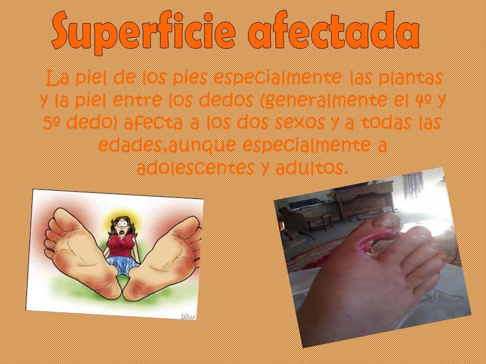 La piel de los pies especialmente las plantas y la piel entre los dedos (generalmente el 4º y 5º dedo) afecta a los dos sexos y a todas las edades,aun