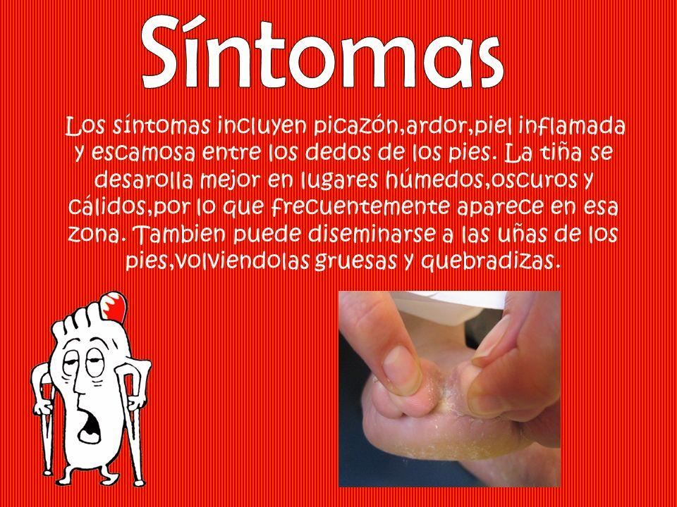 Los síntomas incluyen picazón,ardor,piel inflamada y escamosa entre los dedos de los pies. La tiña se desarolla mejor en lugares húmedos,oscuros y cál