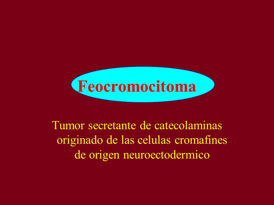 Feocromocitoma Tumor secretante de catecolaminas originado de las celulas cromafines de origen neuroectodermico