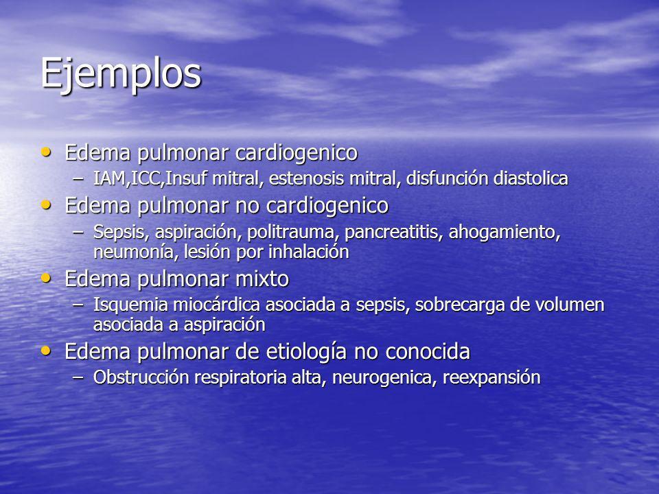 Ejemplos Edema pulmonar cardiogenico Edema pulmonar cardiogenico –IAM,ICC,Insuf mitral, estenosis mitral, disfunción diastolica Edema pulmonar no card