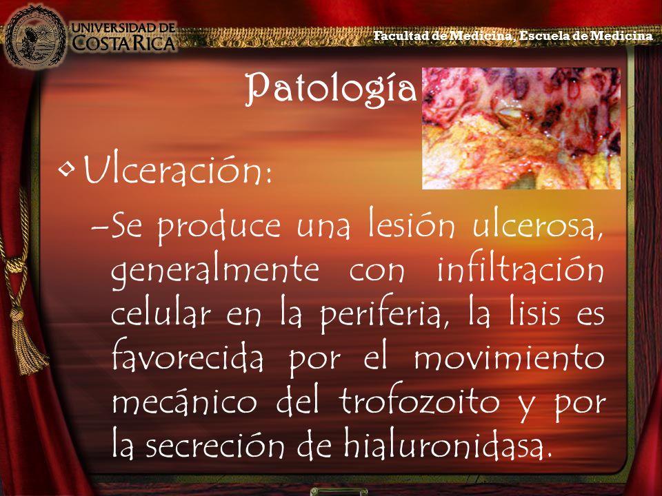 Patología Ulceración: –Se produce una lesión ulcerosa, generalmente con infiltración celular en la periferia, la lisis es favorecida por el movimiento