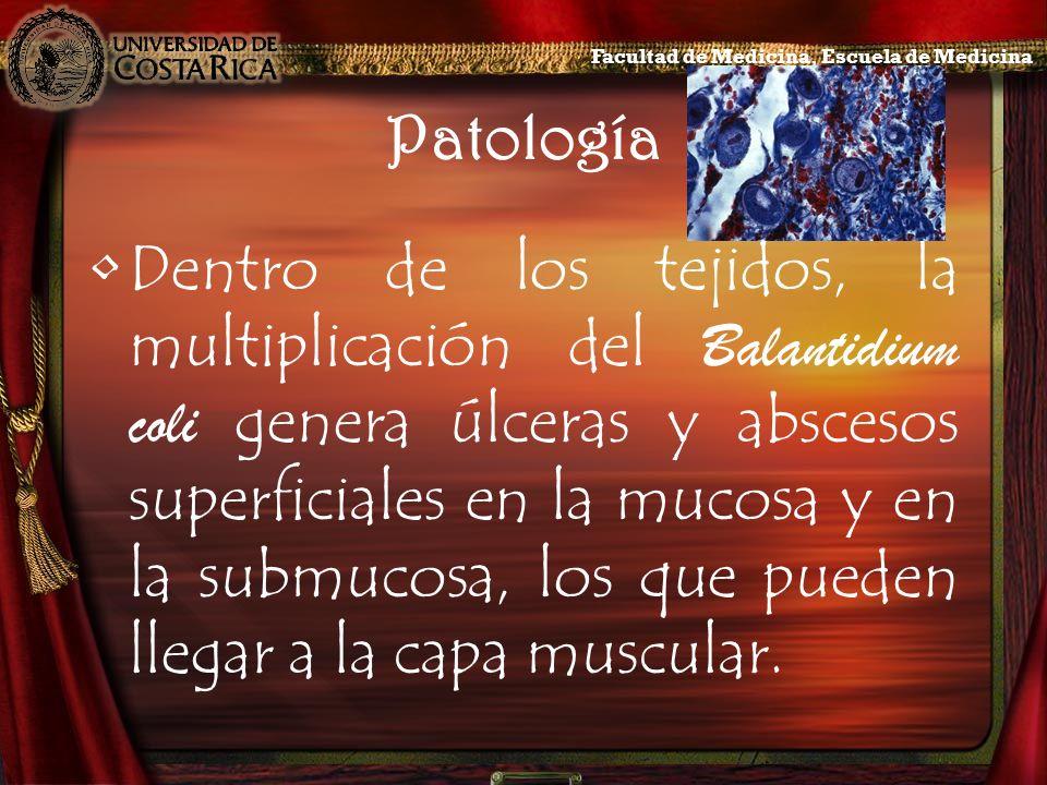 Patología Dentro de los tejidos, la multiplicación del Balantidium coli genera úlceras y abscesos superficiales en la mucosa y en la submucosa, los qu