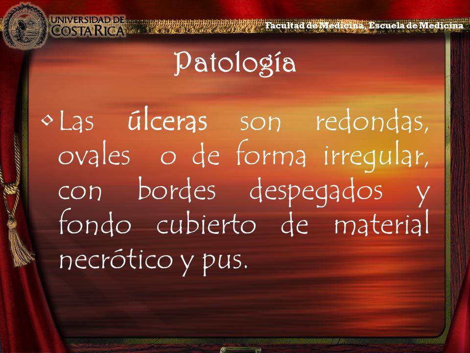 Patología Las úlceras son redondas, ovales o de forma irregular, con bordes despegados y fondo cubierto de material necrótico y pus. Facultad de Medic