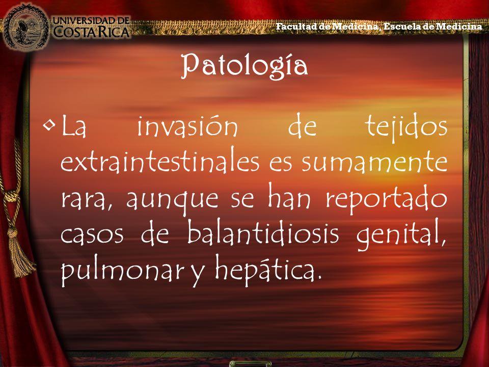Patología La invasión de tejidos extraintestinales es sumamente rara, aunque se han reportado casos de balantidiosis genital, pulmonar y hepática. Fac
