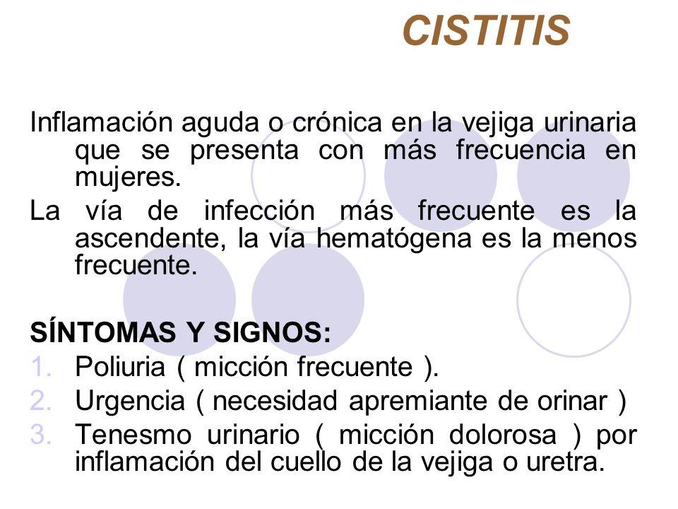 CISTITIS Inflamación aguda o crónica en la vejiga urinaria que se presenta con más frecuencia en mujeres. La vía de infección más frecuente es la asce