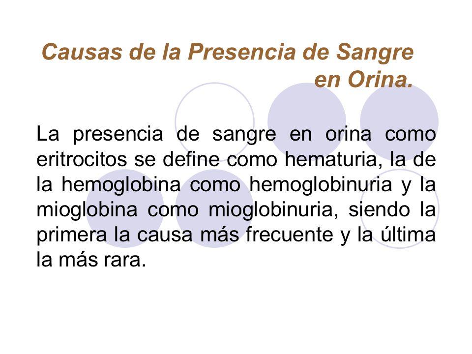 Causas de la Presencia de Sangre en Orina. La presencia de sangre en orina como eritrocitos se define como hematuria, la de la hemoglobina como hemogl