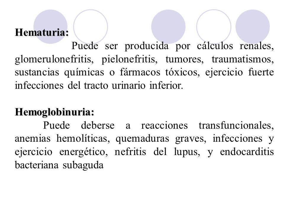 Hematuria: Puede ser producida por cálculos renales, glomerulonefritis, pielonefritis, tumores, traumatismos, sustancias químicas o fármacos tóxicos,