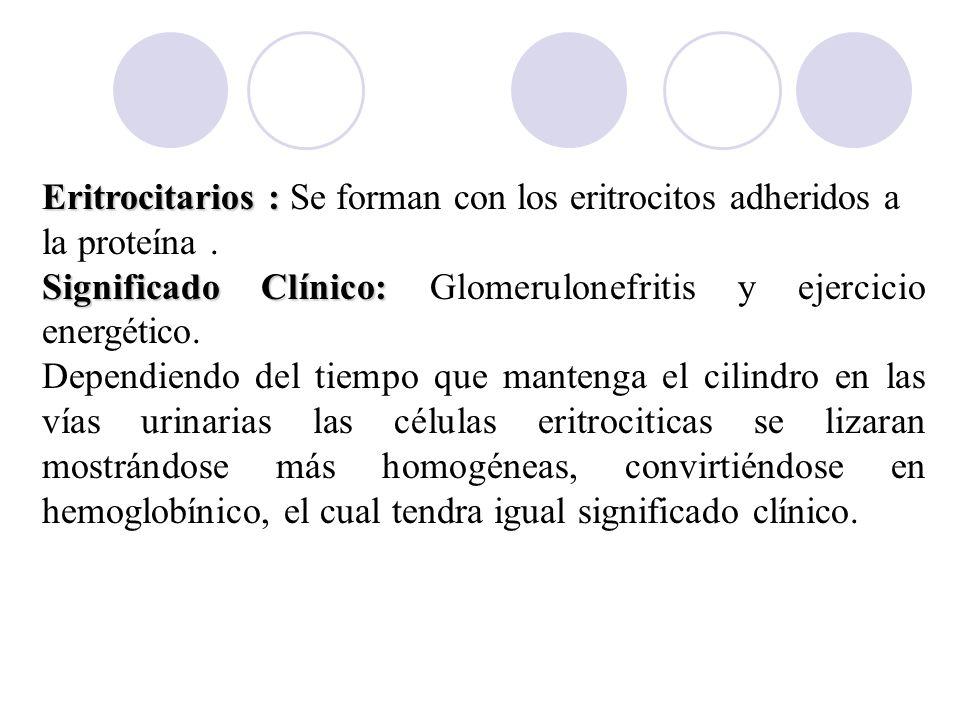 Eritrocitarios : Eritrocitarios : Se forman con los eritrocitos adheridos a la proteína. Significado Clínico: Significado Clínico: Glomerulonefritis y