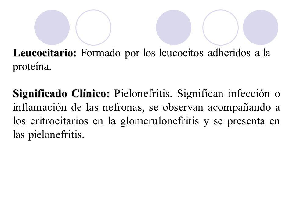 Leucocitario: Leucocitario: Formado por los leucocitos adheridos a la proteína. Significado Clínico: Significado Clínico: Pielonefritis. Significan in