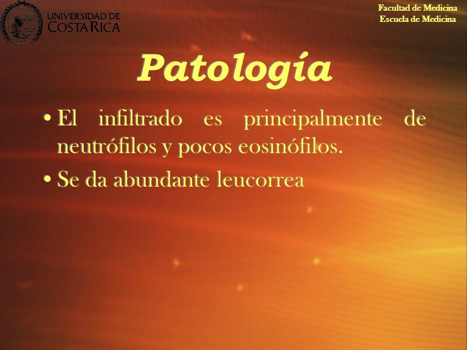 Patología El infiltrado es principalmente de neutrófilos y pocos eosinófilos. Se da abundante leucorrea El infiltrado es principalmente de neutrófilos