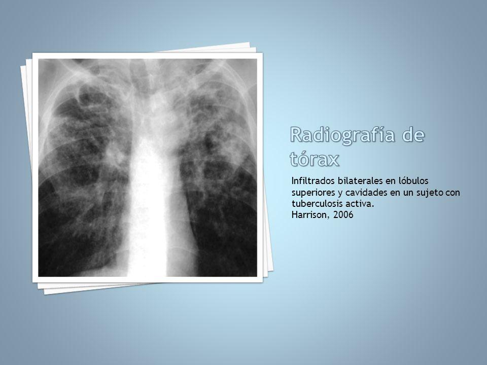 Infiltrados bilaterales en lóbulos superiores y cavidades en un sujeto con tuberculosis activa. Harrison, 2006