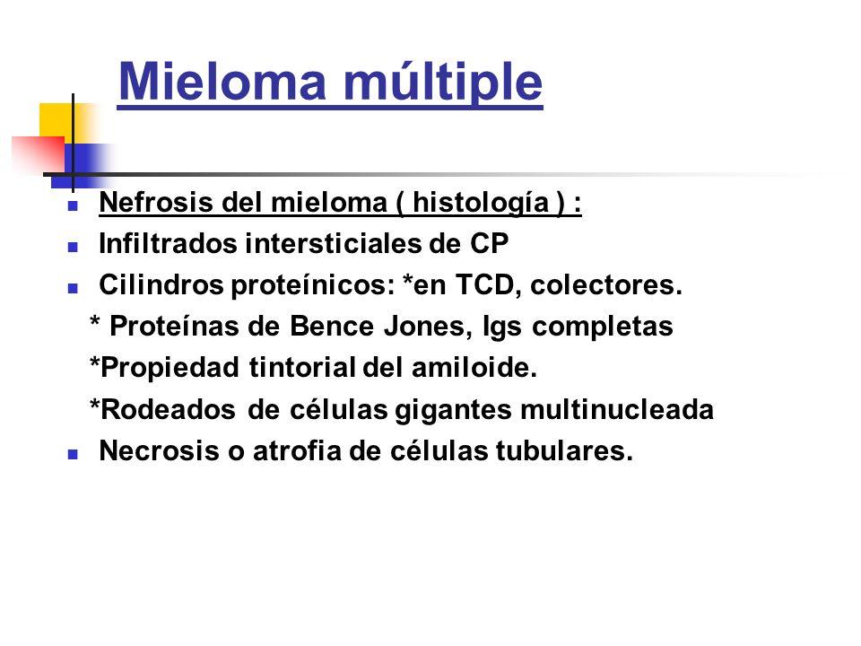 Mieloma múltiple Nefrosis del mieloma ( histología ) : Infiltrados intersticiales de CP Cilindros proteínicos: *en TCD, colectores. * Proteínas de Ben
