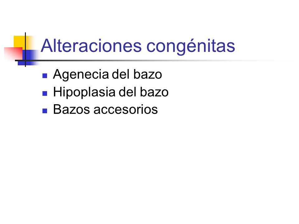 Alteraciones congénitas Agenecia del bazo Hipoplasia del bazo Bazos accesorios