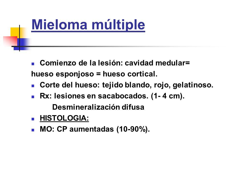Mieloma múltiple Comienzo de la lesión: cavidad medular= hueso esponjoso = hueso cortical. Corte del hueso: tejido blando, rojo, gelatinoso. Rx: lesio