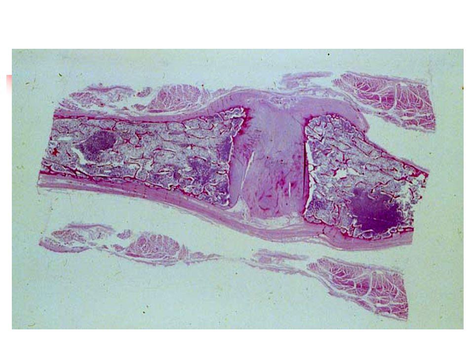 El hilio se ubica en la superficie mediante el bazo y es por donde pasan la arteria, vena, nervios y vasos linfáticos.