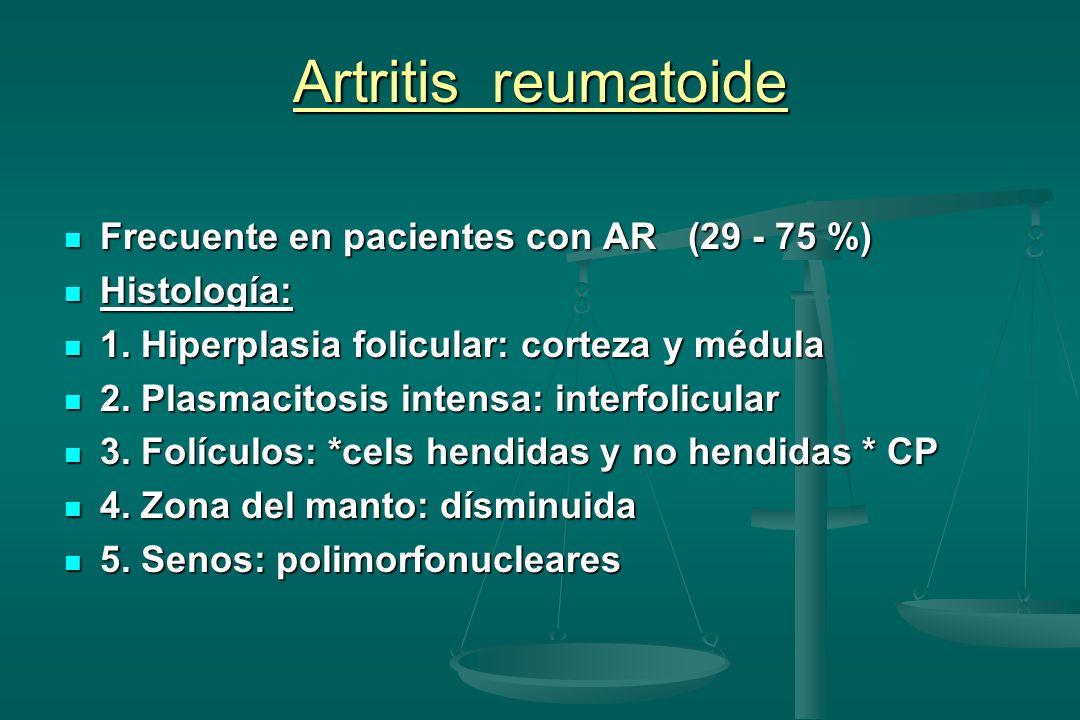 Artritis reumatoide Frecuente en pacientes con AR (29 - 75 %) Frecuente en pacientes con AR (29 - 75 %) Histología: Histología: 1. Hiperplasia folicul