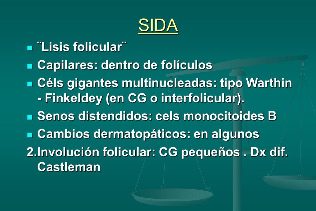 SIDA ¨Lisis folicular¨ ¨Lisis folicular¨ Capilares: dentro de folículos Capilares: dentro de folículos Céls gigantes multinucleadas: tipo Warthin - Fi