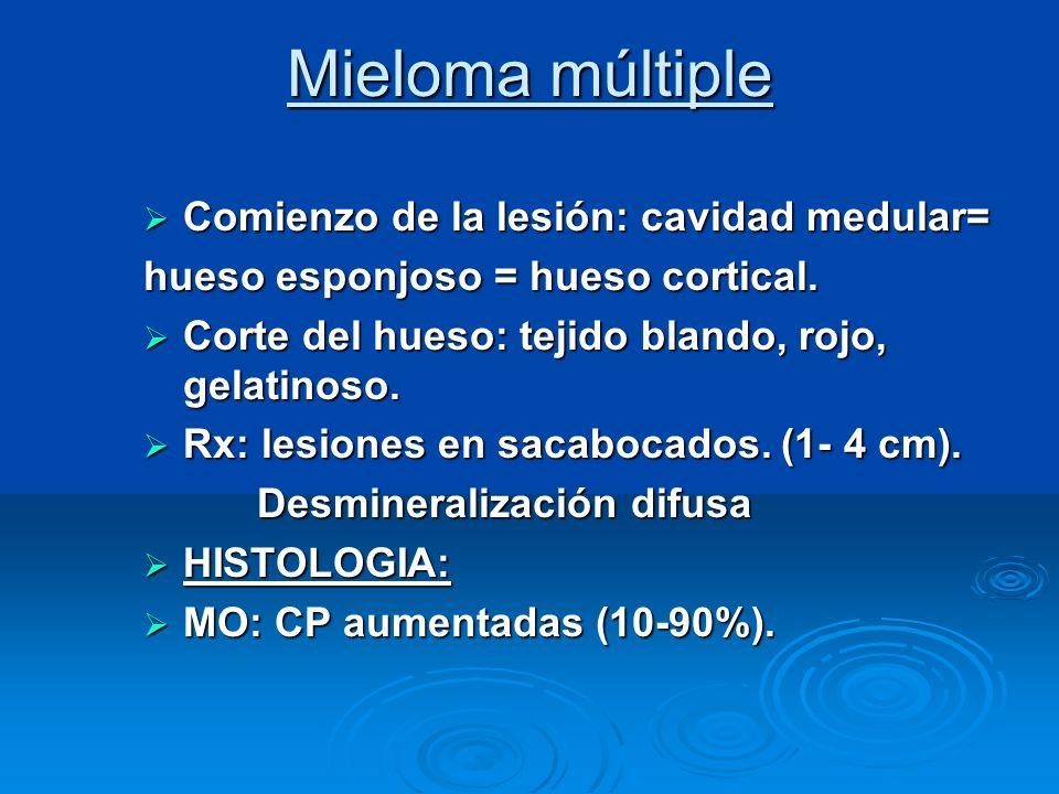 Mieloma múltiple Comienzo de la lesión: cavidad medular= Comienzo de la lesión: cavidad medular= hueso esponjoso = hueso cortical. Corte del hueso: te
