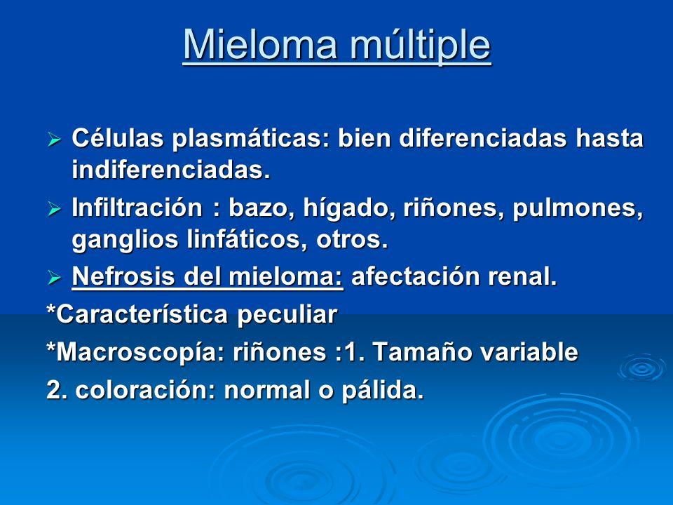 Mieloma múltiple Nefrosis del mieloma ( histología ) : Nefrosis del mieloma ( histología ) : Infiltrados intersticiales de CP Infiltrados intersticiales de CP Cilindros proteínicos: *en TCD, colectores.