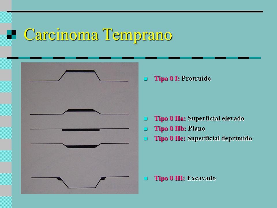 Carcinoma Temprano Tipo 0 I: Protruído Tipo 0 I: Protruído Tipo 0 IIa: Superficial elevado Tipo 0 IIa: Superficial elevado Tipo 0 IIb: Plano Tipo 0 II