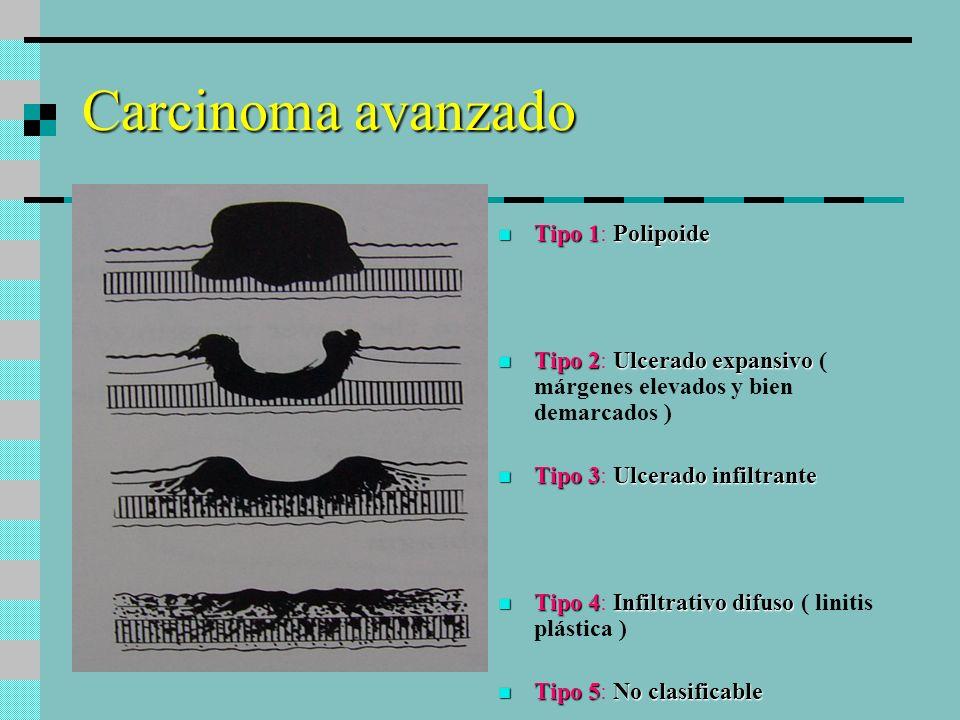 Carcinoma avanzado Tipo 1Polipoide Tipo 1: Polipoide Tipo 2Ulcerado expansivo Tipo 2: Ulcerado expansivo ( márgenes elevados y bien demarcados ) Tipo