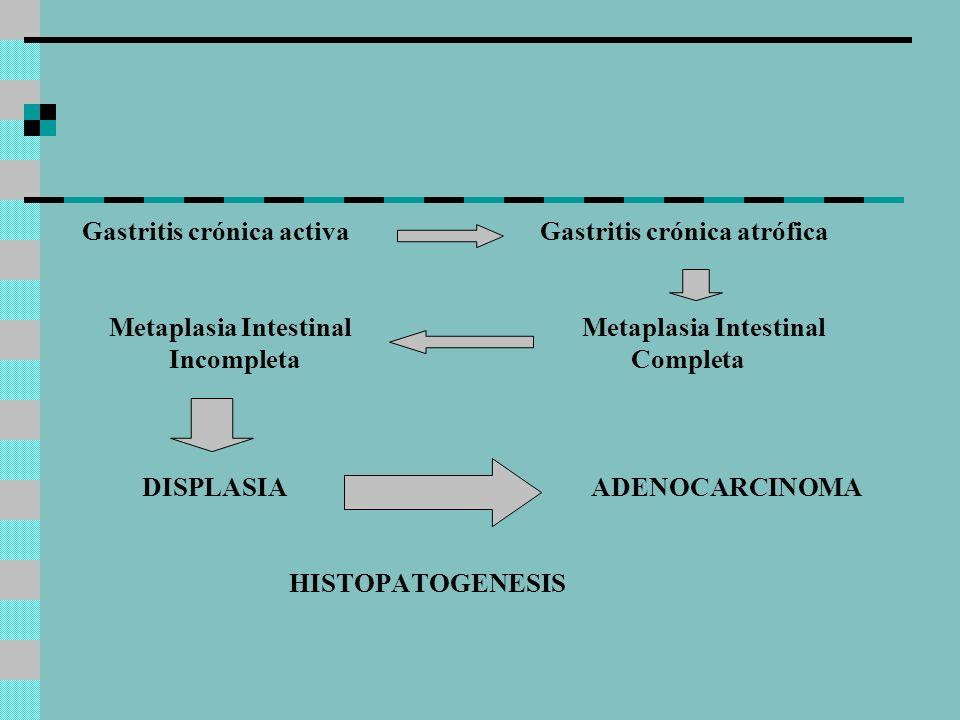 Gastritis crónica activa Gastritis crónica atrófica Metaplasia Intestinal Metaplasia Intestinal Incompleta Completa DISPLASIA ADENOCARCINOMA HISTOPATO