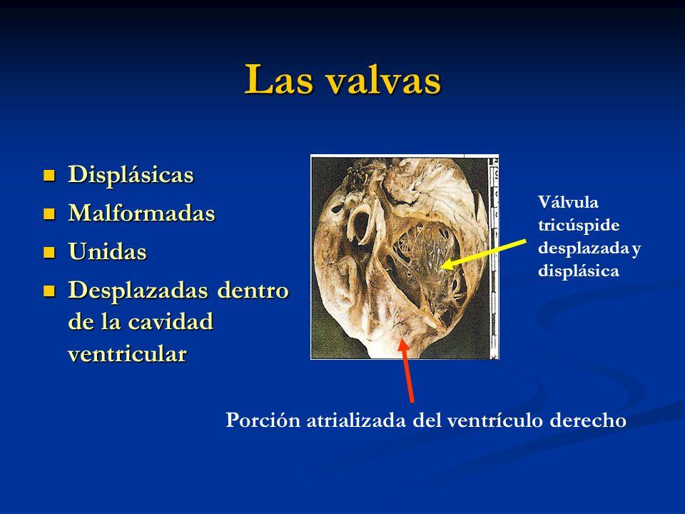 Las valvas Displásicas Displásicas Malformadas Malformadas Unidas Unidas Desplazadas dentro de la cavidad ventricular Desplazadas dentro de la cavidad