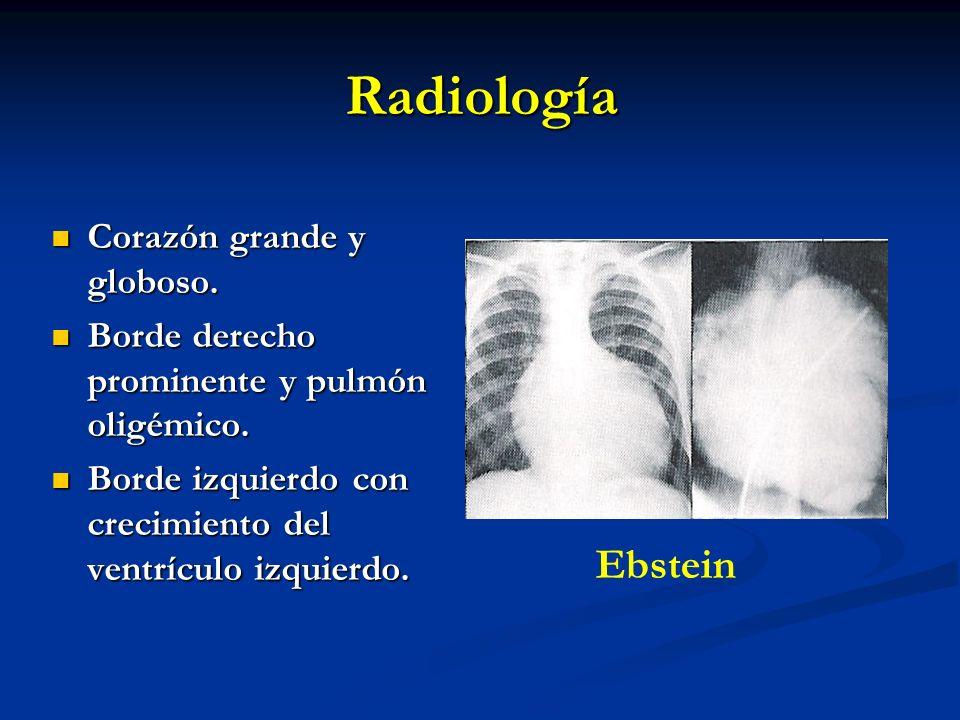 Radiología Corazón grande y globoso. Corazón grande y globoso. Borde derecho prominente y pulmón oligémico. Borde derecho prominente y pulmón oligémic