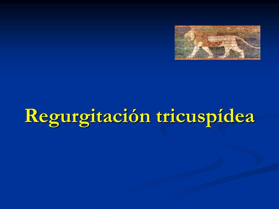 Regurgitación tricuspídea