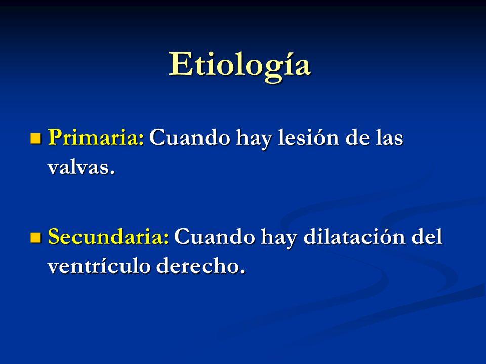 Etiología Primaria: Cuando hay lesión de las valvas. Primaria: Cuando hay lesión de las valvas. Secundaria: Cuando hay dilatación del ventrículo derec