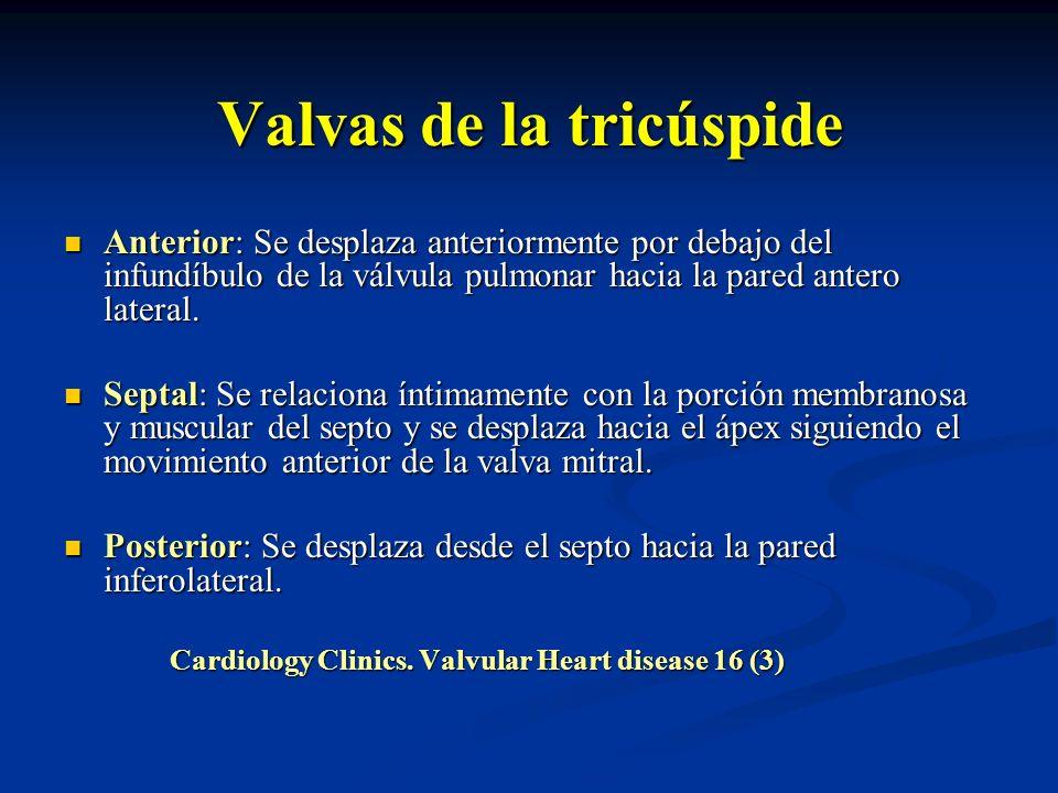 Valvas de la tricúspide Anterior: Se desplaza anteriormente por debajo del infundíbulo de la válvula pulmonar hacia la pared antero lateral. Anterior: