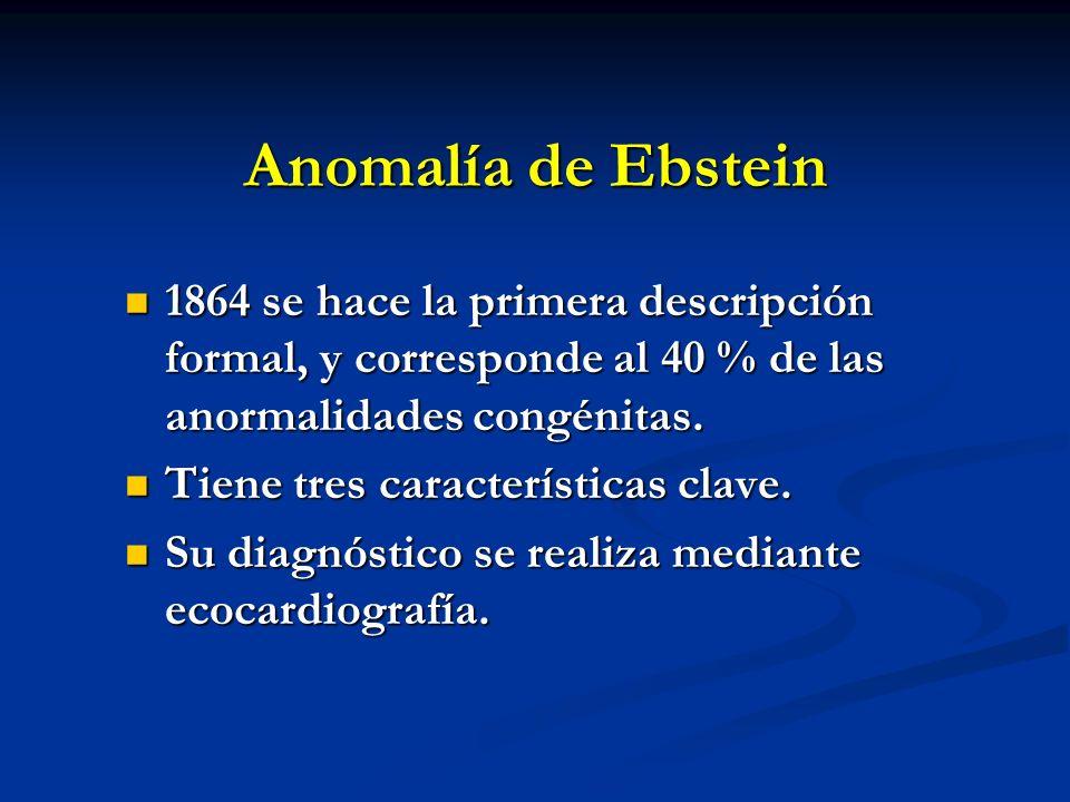 Anomalía de Ebstein 1864 se hace la primera descripción formal, y corresponde al 40 % de las anormalidades congénitas. 1864 se hace la primera descrip