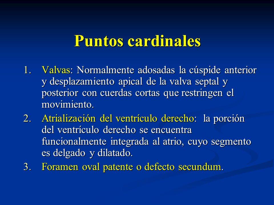 Puntos cardinales 1.Valvas: Normalmente adosadas la cúspide anterior y desplazamiento apical de la valva septal y posterior con cuerdas cortas que res