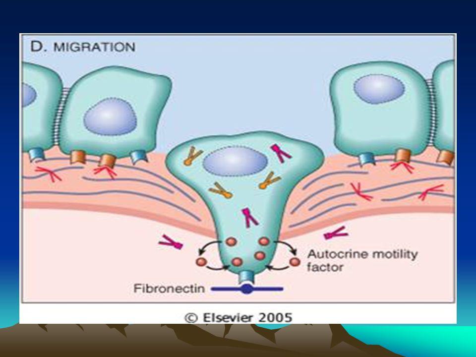 Célula transformada expansión clonal ( crecimiento/ diversificación / angiogénesis ) subclona metastásica adhesión e invasión MB epitelial pasaje a travéz de la matriz extracelular intravasación interacción con células linfoides del huésped émbolo de células tumorales adhesión a MB extravasación depósito metastásico angiogénesis crecimiento tumoral a distancia.