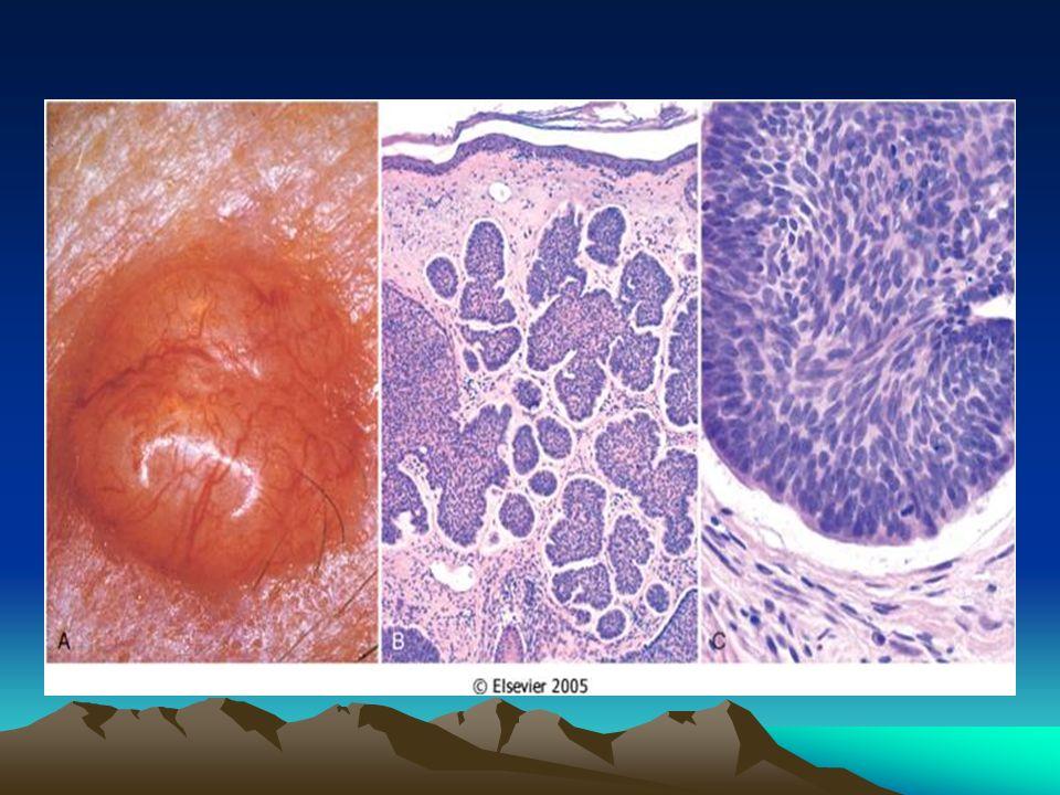 VIRUS/BACTERIAS Virus del papiloma humano ( HPV ), subtipo 16: cáncer del cuello uterino Virus de la hepatitis B ( HBV ): hepatocarcinoma BACTERIAS: Helicobacter pylori linfoma MALT y cáncer gástrico