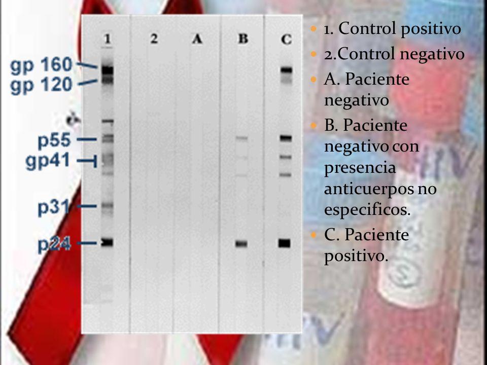 1. Control positivo 2.Control negativo A. Paciente negativo B. Paciente negativo con presencia anticuerpos no especificos. C. Paciente positivo.