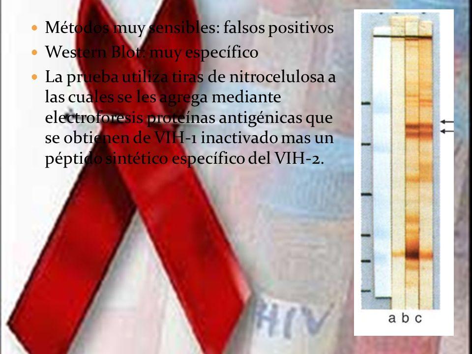 La presencia o ausencia de anticuerpos frente al VIH se determina comparando cada tira con las tiras de control del ensayo.