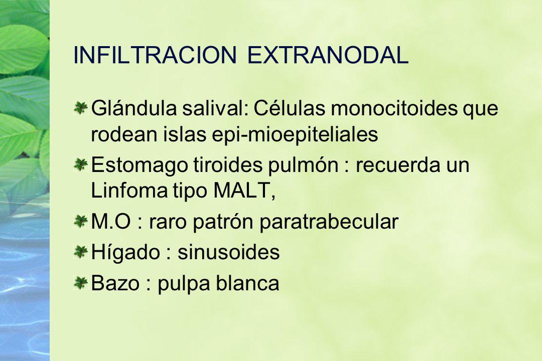 INFILTRACION EXTRANODAL Glándula salival: Células monocitoides que rodean islas epi-mioepiteliales Estomago tiroides pulmón : recuerda un Linfoma tipo