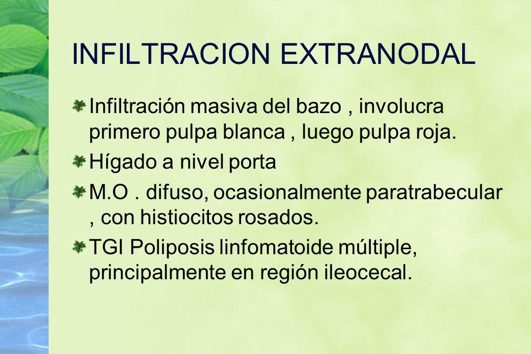 INFILTRACION EXTRANODAL Infiltración masiva del bazo, involucra primero pulpa blanca, luego pulpa roja. Hígado a nivel porta M.O. difuso, ocasionalmen