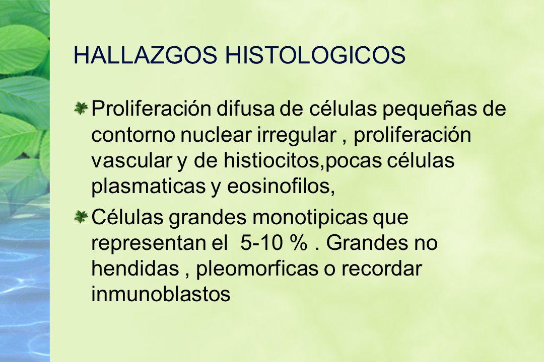 HALLAZGOS HISTOLOGICOS Proliferación difusa de células pequeñas de contorno nuclear irregular, proliferación vascular y de histiocitos,pocas células p