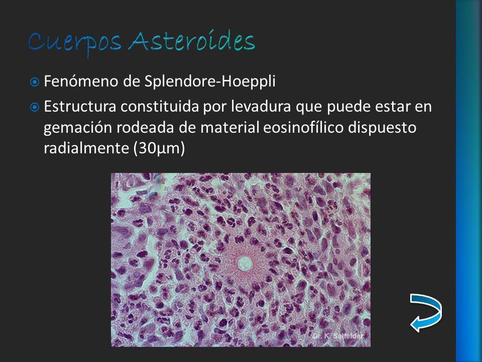 Fenómeno de Splendore-Hoeppli Estructura constituida por levadura que puede estar en gemación rodeada de material eosinofílico dispuesto radialmente (