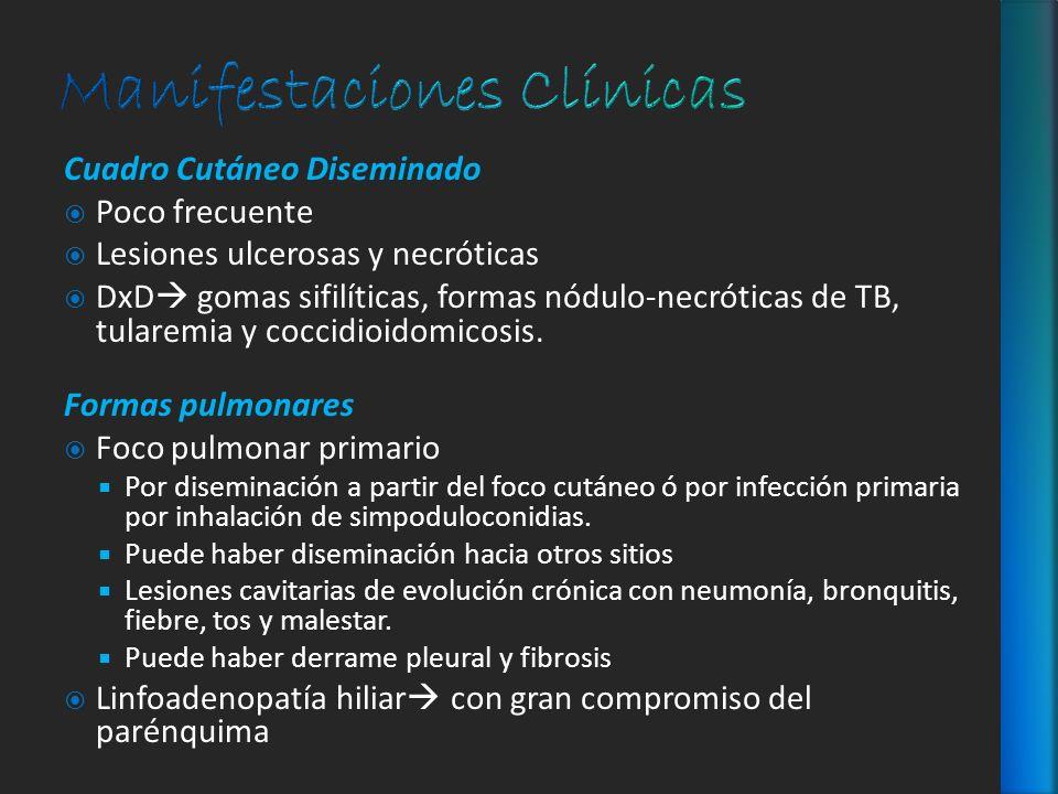 Cuadro Cutáneo Diseminado Poco frecuente Lesiones ulcerosas y necróticas DxD gomas sifilíticas, formas nódulo-necróticas de TB, tularemia y coccidioid