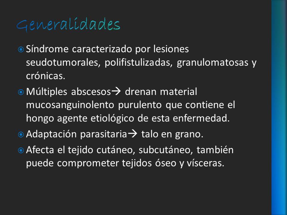 Síndrome caracterizado por lesiones seudotumorales, polifistulizadas, granulomatosas y crónicas. Múltiples abscesos drenan material mucosanguinolento
