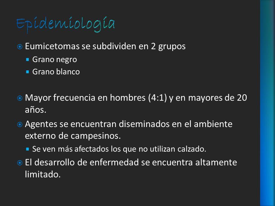 Eumicetomas se subdividen en 2 grupos Grano negro Grano blanco Mayor frecuencia en hombres (4:1) y en mayores de 20 años. Agentes se encuentran disemi