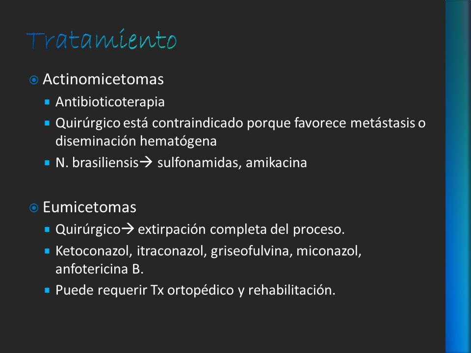 Actinomicetomas Antibioticoterapia Quirúrgico está contraindicado porque favorece metástasis o diseminación hematógena N. brasiliensis sulfonamidas, a