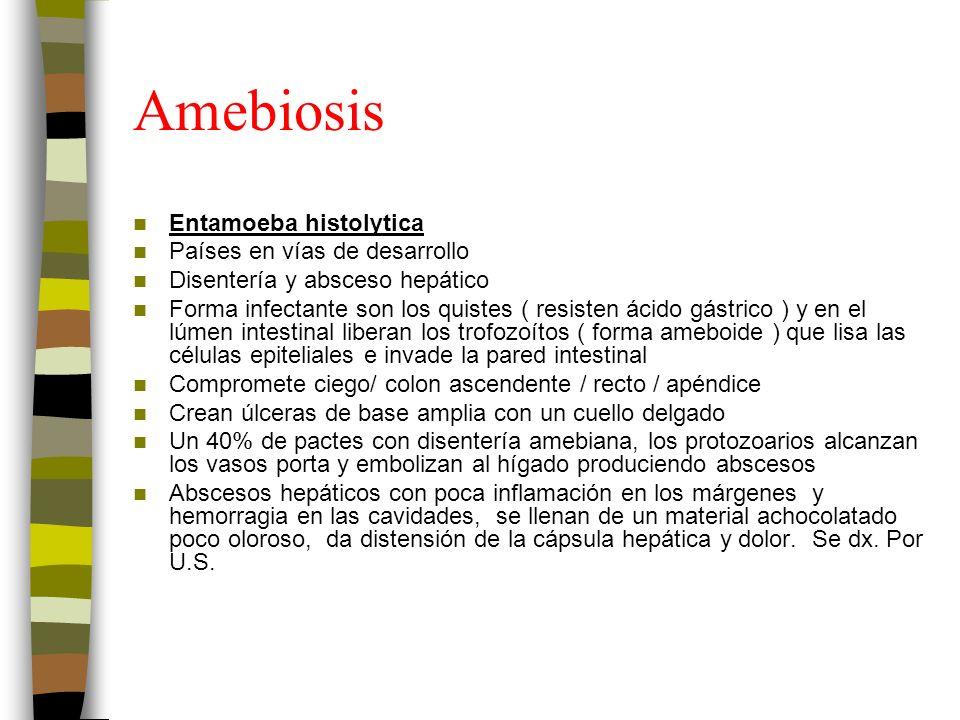 Amebiosis Entamoeba histolytica Países en vías de desarrollo Disentería y absceso hepático Forma infectante son los quistes ( resisten ácido gástrico ) y en el lúmen intestinal liberan los trofozoítos ( forma ameboide ) que lisa las células epiteliales e invade la pared intestinal Compromete ciego/ colon ascendente / recto / apéndice Crean úlceras de base amplia con un cuello delgado Un 40% de pactes con disentería amebiana, los protozoarios alcanzan los vasos porta y embolizan al hígado produciendo abscesos Abscesos hepáticos con poca inflamación en los márgenes y hemorragia en las cavidades, se llenan de un material achocolatado poco oloroso, da distensión de la cápsula hepática y dolor.