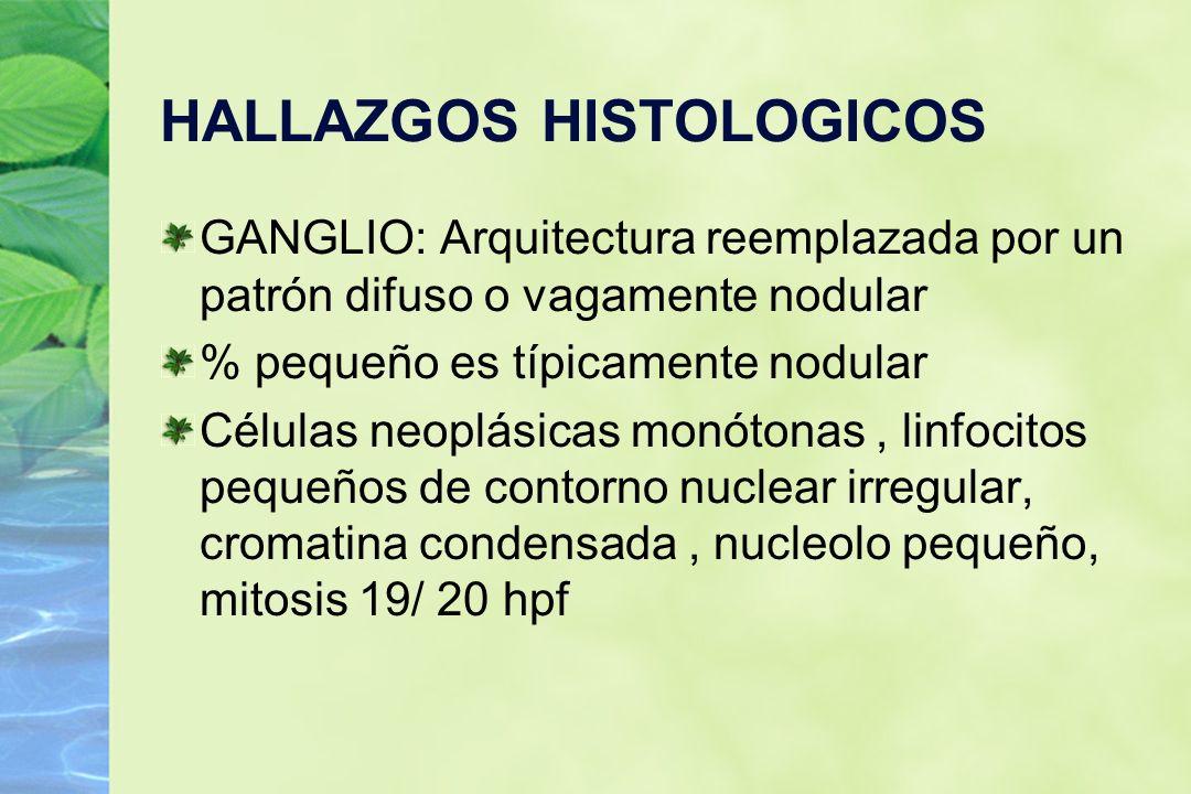 HALLAZGOS HISTOLOGICOS GANGLIO: Arquitectura reemplazada por un patrón difuso o vagamente nodular % pequeño es típicamente nodular Células neoplásicas